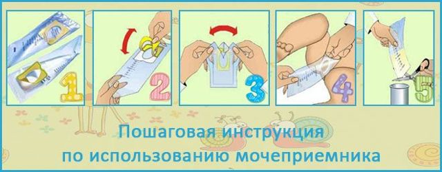 Расшифровка и норма анализа мочи по Нечипоренко у ребенка – как сдавать