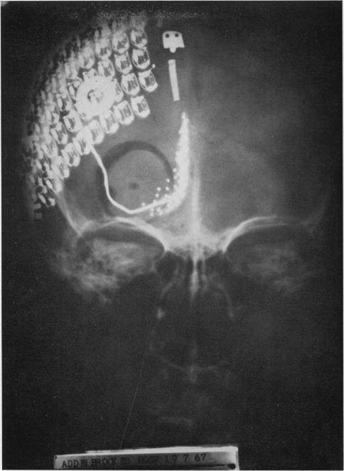 Искусственный бионический глаз - зрительная система будущего
