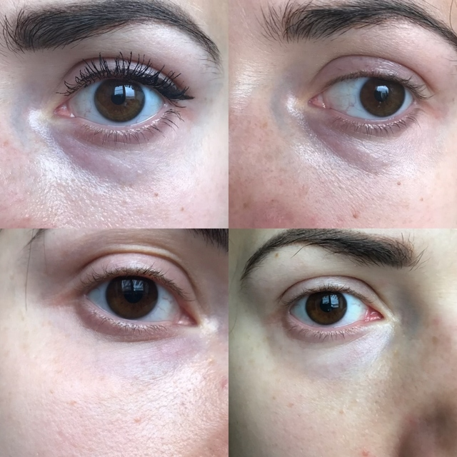 Слезная борозда под глазами - как убрать, фото до и после