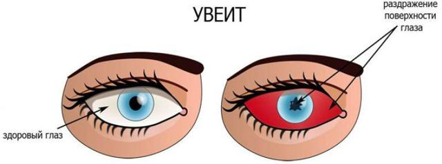 Радужка глаза - строение, функции