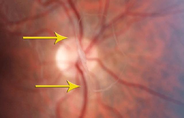 Болезни глаз у человека - названия, полный список