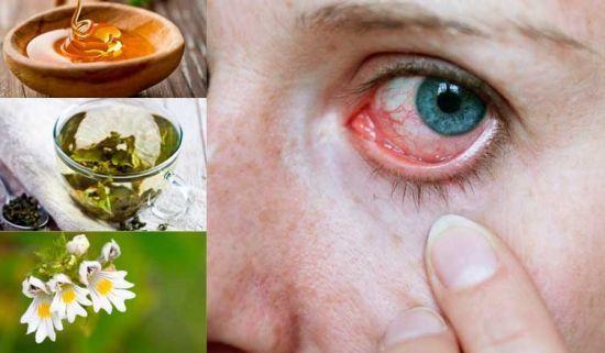 Отслойка стекловидного тела - лечение, симптомы задней отслойки, причины