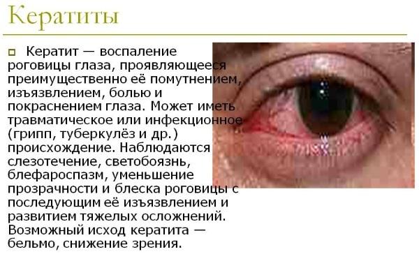 Опатанол капли глазные - инструкция, цена, отзывы
