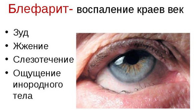 Нарушение рефракции - что это, диагностика, причины, лечение, последствия