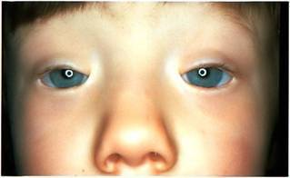 Блефарофимоз - что это, причины, диагностика, лечение, последствия
