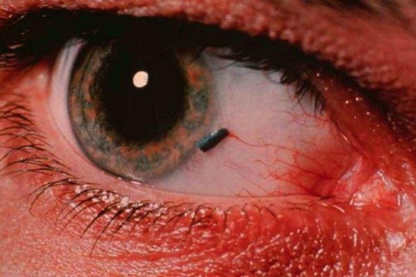 Гноятся глаза у взрослого - причины, чем лечить