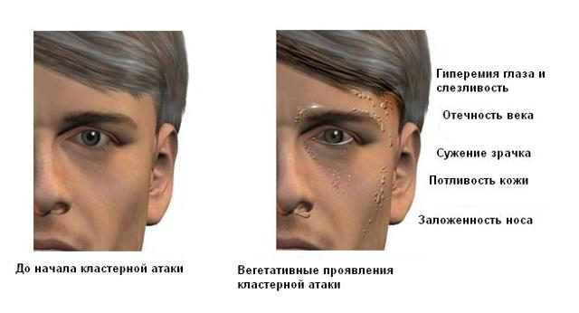 Боль в висках и глазах - что это, лечение, причины и симптомы