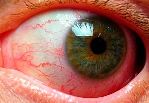 Лопнул капилляр в глазу - что делать, причины и лечение