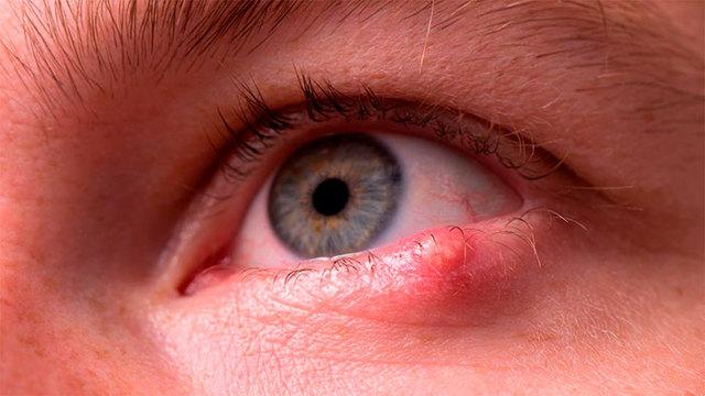 Вигамокс капли глазные - инструкция, цена, отзывы
