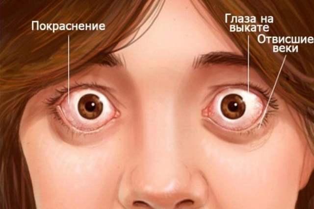 Выпученные глаза - как называется пучеглазие