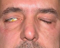 Лагофтальм - что это, причины, симптомы, диагностика, лечение