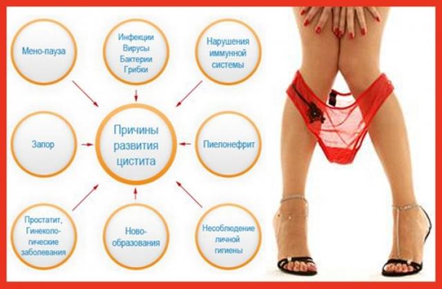 Цистит у женщин — причины, как проявляется, лечение