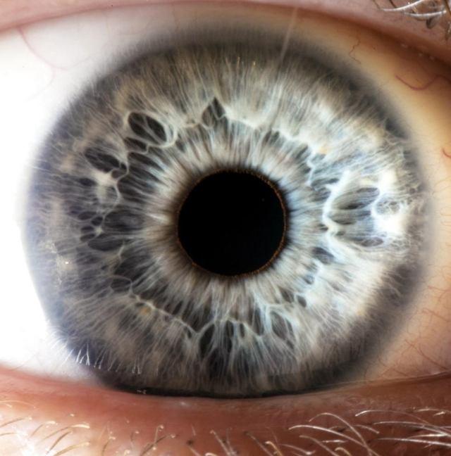 Диаметр зрачка в норме - причины изменения размера