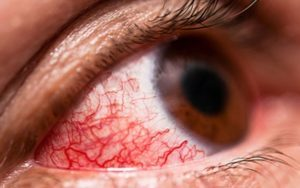 Инъекция склер - виды, диагностика, лечение