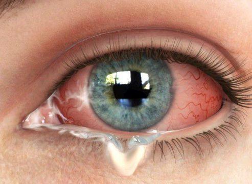 Белый налет, выделения, слизь на глазах у человека