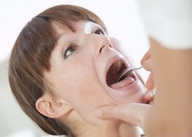 Синдром Шегрена - что это, симптомы, причины и лечение
