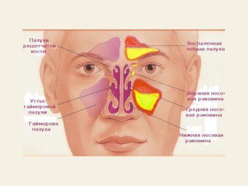 Болит голова справа и правый глаз