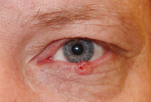 Рак глаза - Симптомы, фото, причины и лечение