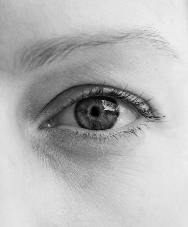 Монохромазия - что это, причины и лечение