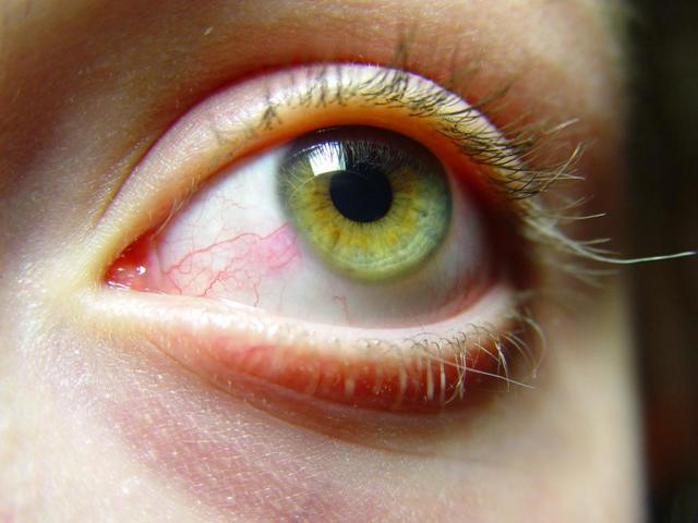 Как безопасно вытащить соринку из глаза