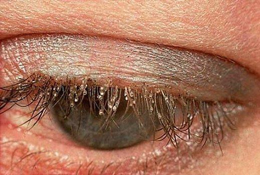 Демодекоз глаз (век) - симптомы и лечение, фото
