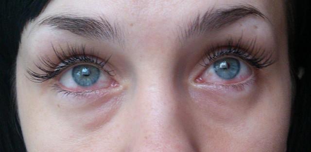 Повреждение роговицы глаза - лечение, последствия травмы, что делать