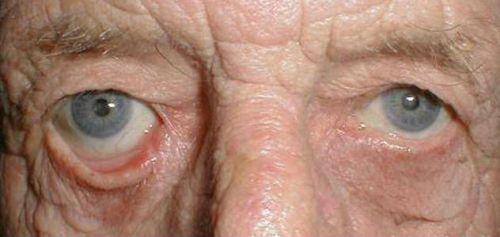 Строение века глаза человека