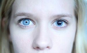 Зрачки разного размера - что это, причины у взрослых и детей