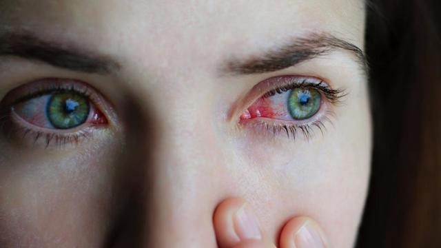 Аллергия на глазах - симптомы и лечение