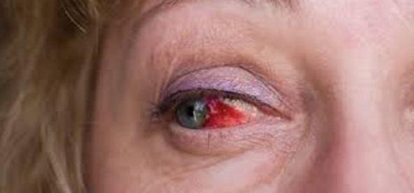 Кровь из глаз - фото, причины, лечение, что делать