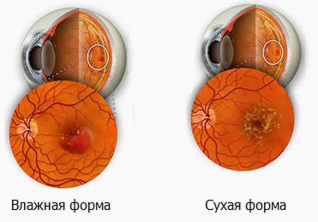 Макулопатия сетчатки - что это, лечение, причины и симптомы