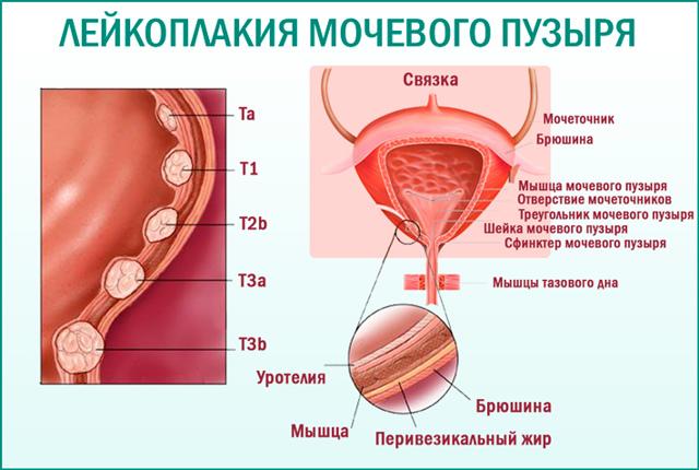 Что такое лейкоплакия мочевого пузыря — признаки, лечение