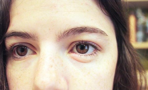 Отек глаз при аллергии - как быстро снять опухлость