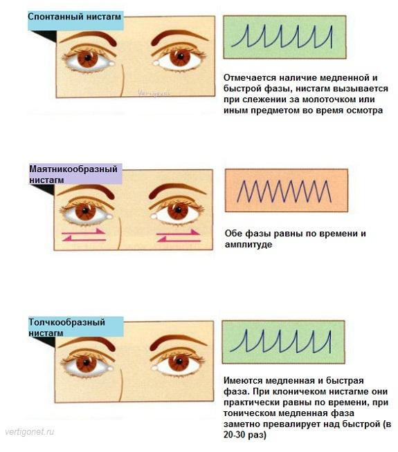 Горизонтальный нистагм - причины, лечение, профилактика