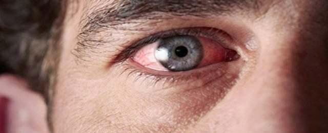 Болят глаза от сварки - первая помощь, что делать