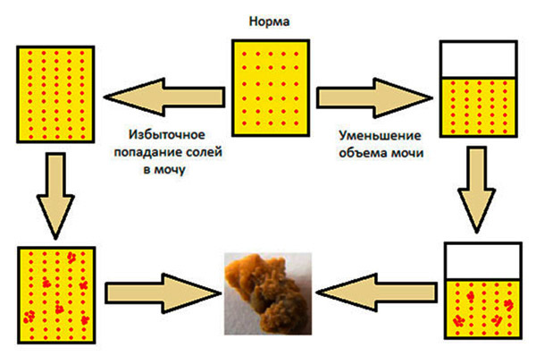 Фосфатурия — одна из причин образования камней в мочевыделительной системе