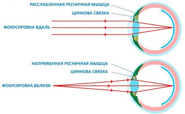 Глаза не фокусируются - расфокусировка зрения