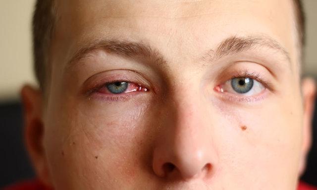Монтевизин капли глазные - инструкция, цена, отзывы