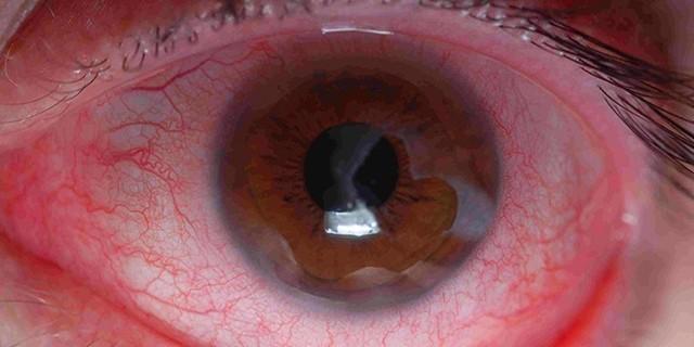 Контузия глаза - что это, лечение, причины и симптомы