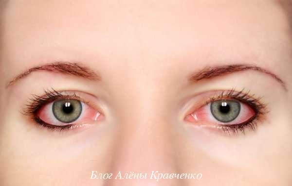 Болит голова и красные глаза - причины, что делать