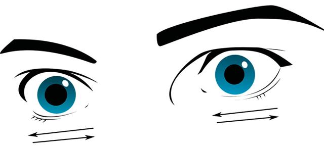 Нистагм (бегающие глаза) - причины, диагностика, лечение