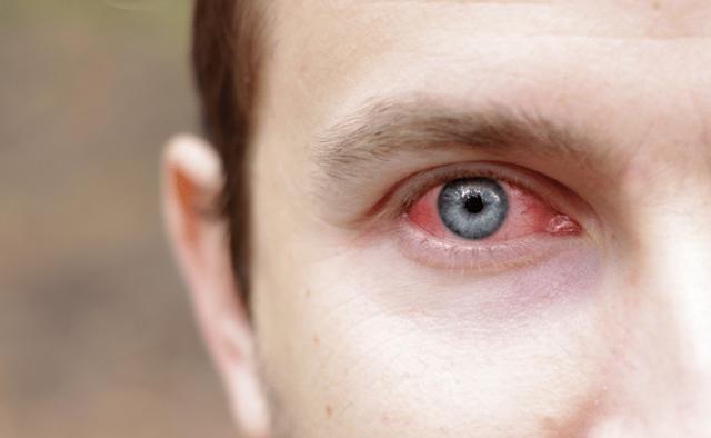 Ожог глаз кварцевой лампой - первая помощь, лечение, последствия