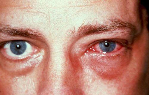 Ожог роговицы глаза - лечение, что делать, последствия