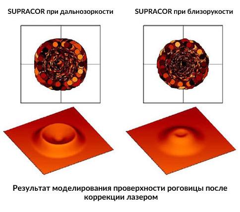 Лазерная коррекция при дальнозоркости