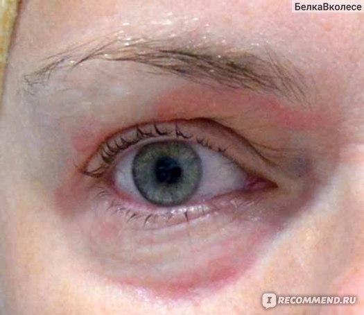 Гидрокортизон капли глазные - инструкция, цена, отзывы