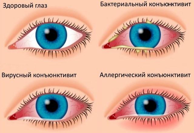 Стиллавит капли глазные - инструкция, цена, отзывы