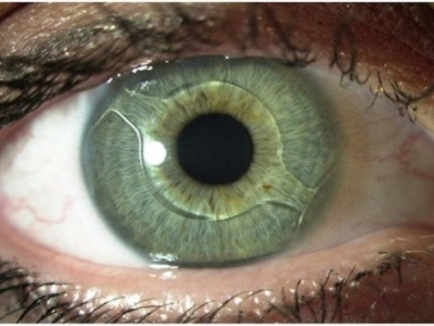 После замены хрусталика глаз мутно видит