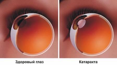 Нарушение зрения - виды, причины, последствия