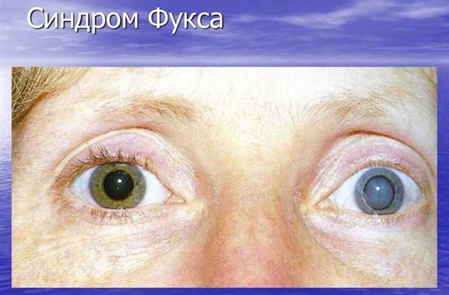 Синдром Фукса - что это, лечение, причины и симптомы