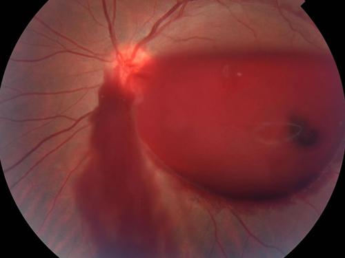 Кровоизлияние в стекловидное тело - что это, фото, симптомы, причины и лечение